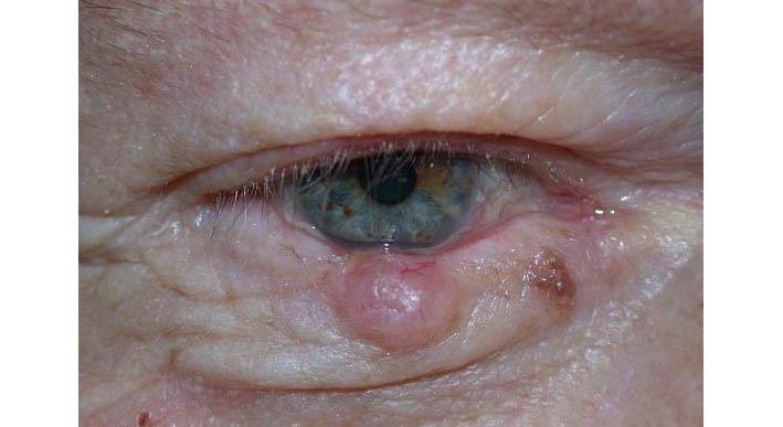 torokrák okai és tünetei