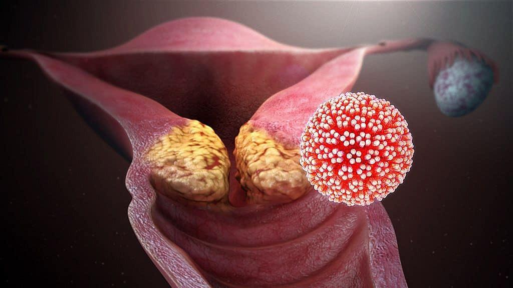 hpv vírus emberi test
