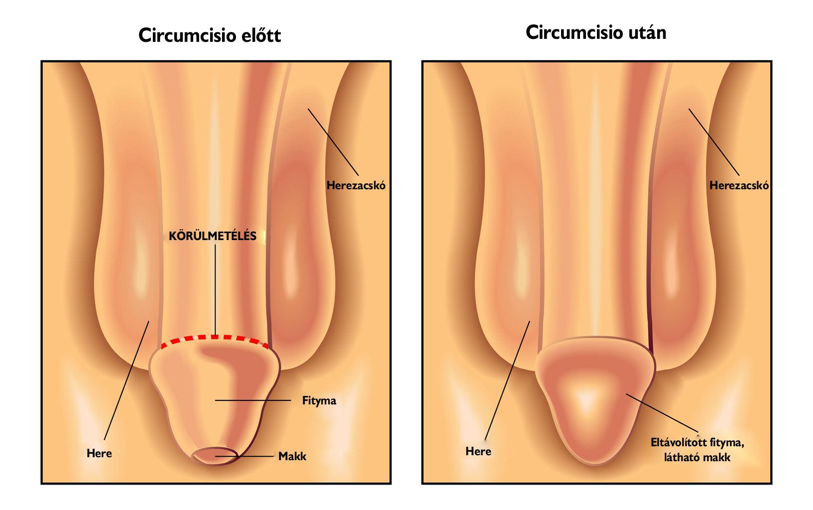 Condyloma - Dr. Felföldi Nőgyógyászat