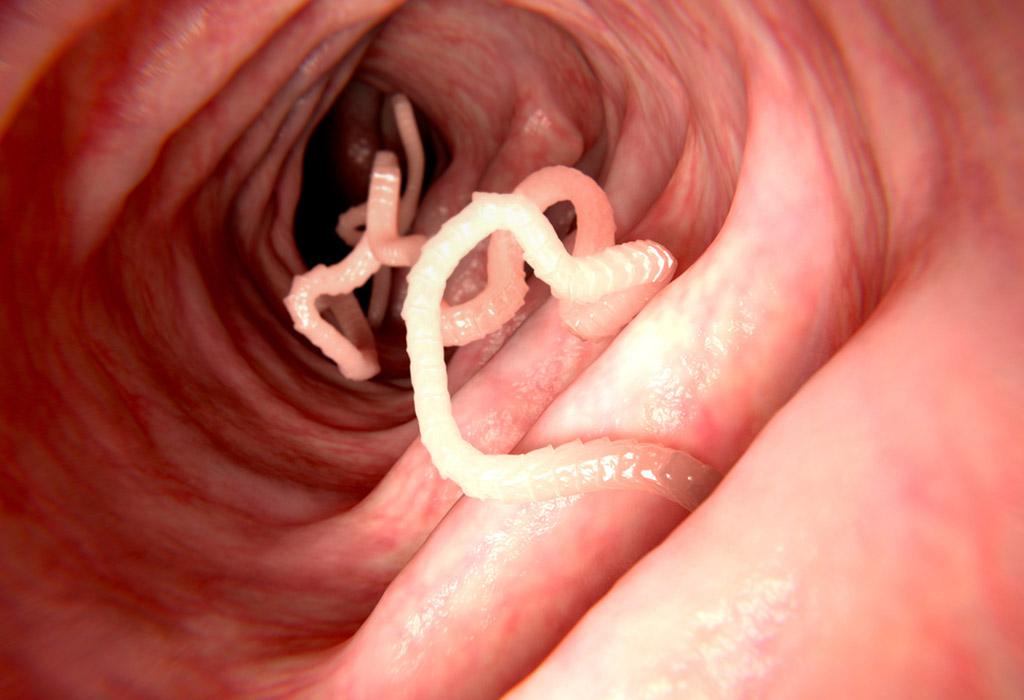 Instant tudomány: Parazita is okozhat rákot, elképedtek a tudósok   vigbor.hu