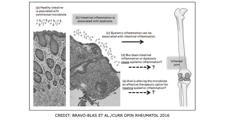 dysbiosis rheumatoid arthritis