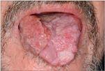 papilloma vírus és nyelv
