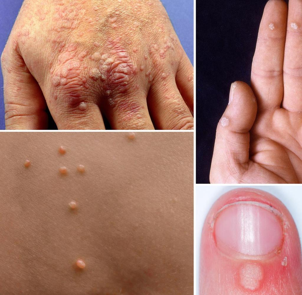Human papilloma virus ferfiaknal