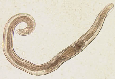 hogyan kell kezelni a parazitákat az ízületekben a szervezet méregtelenítése antibiotikumok után