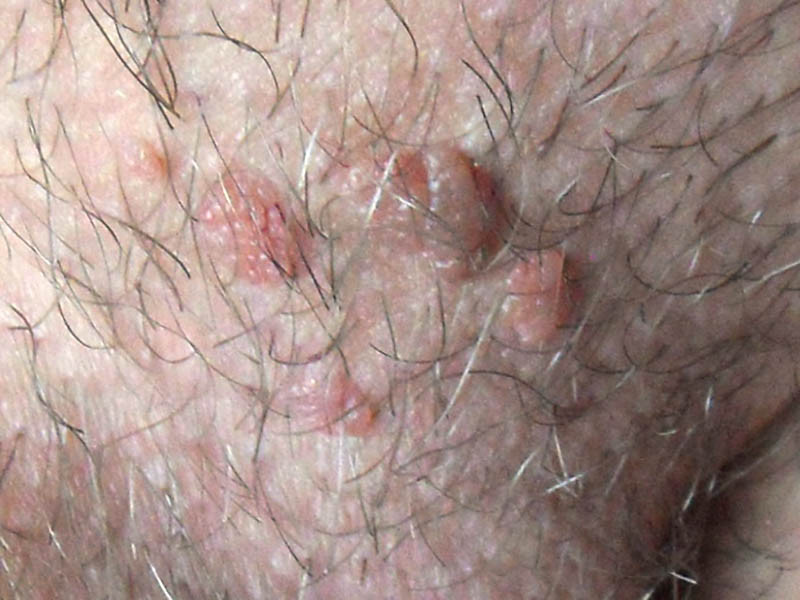 férgek befolyásolják e a bőrt